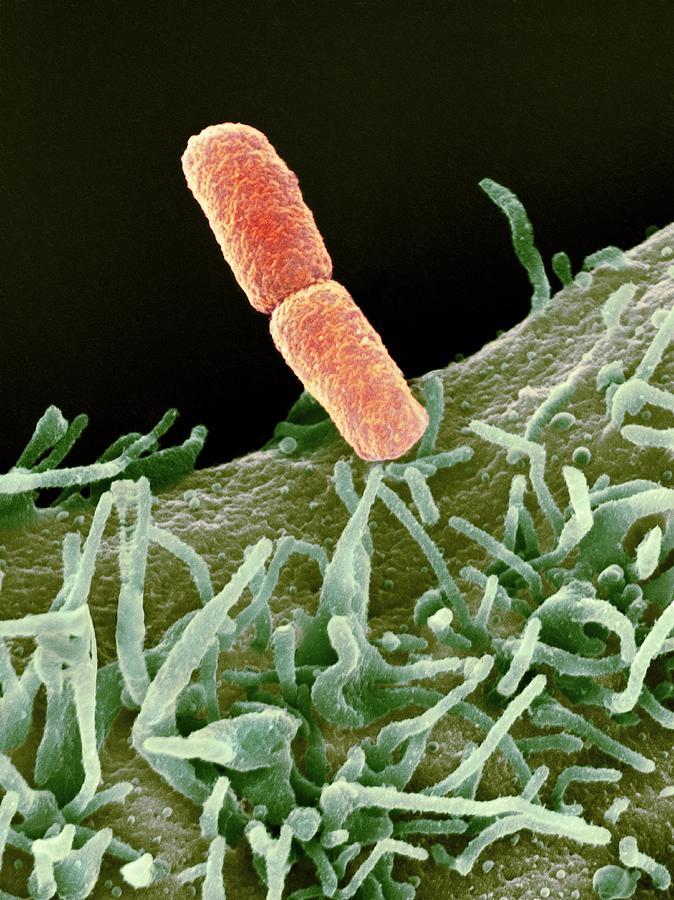Bacillary Dysentery Photograph - Shigella Bacteria, Sem by
