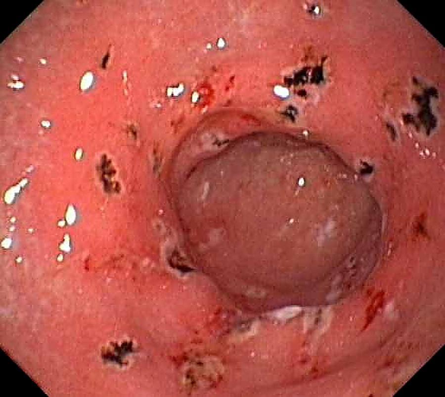 Gastritis With Bleeding