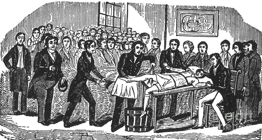 History Photograph - Surgery Without Anesthesia, Pre-1840s by Science Source