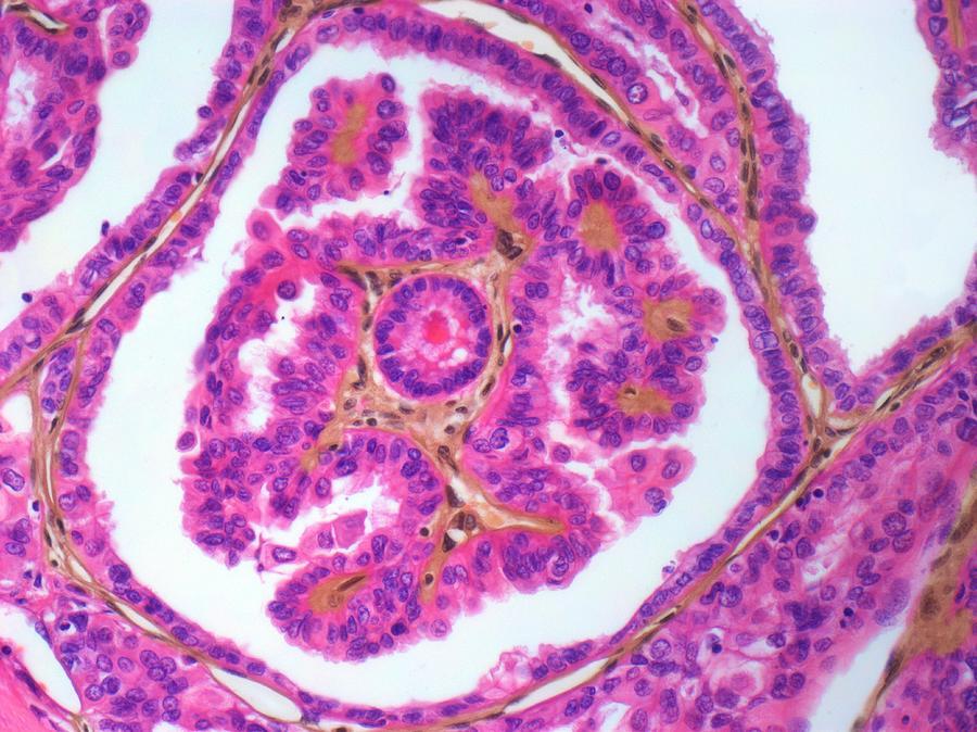 Thyroid Cancer, Light Micrograph Digital Art by Steve Gschmeissner