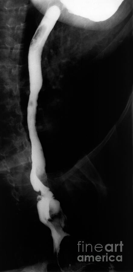 X-ray Photograph - Vena Cava by Ted Kinsman