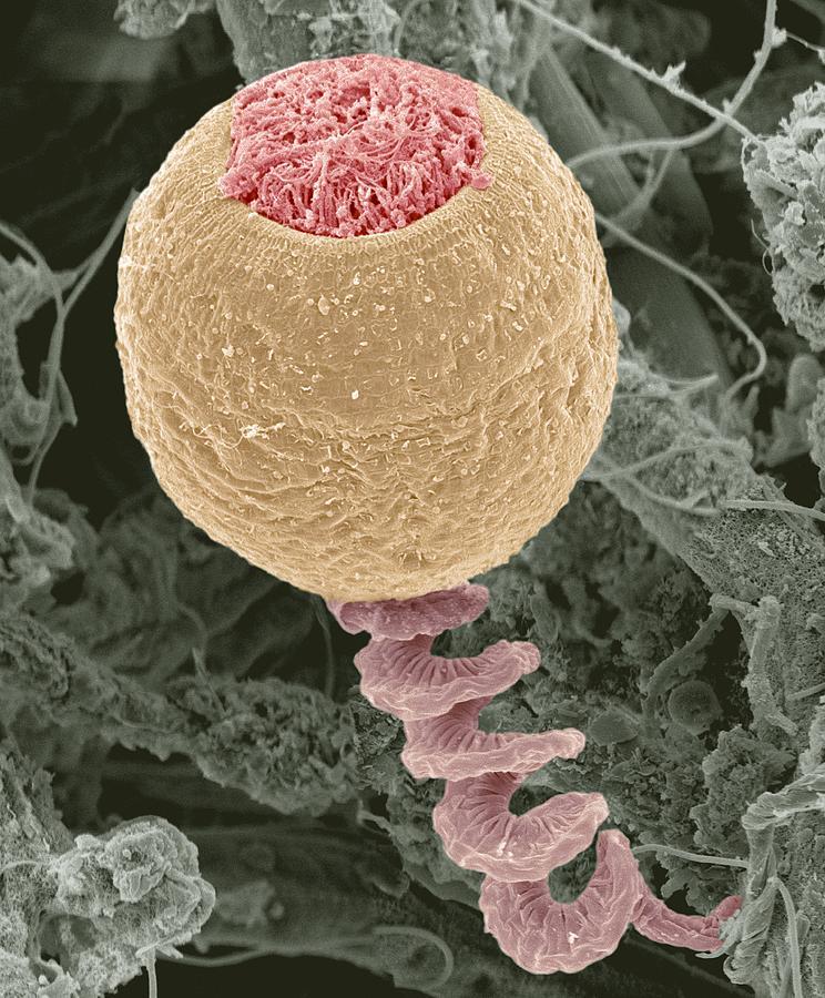 Anchored Photograph - Vorticella Protozoan, Sem by Steve Gschmeissner