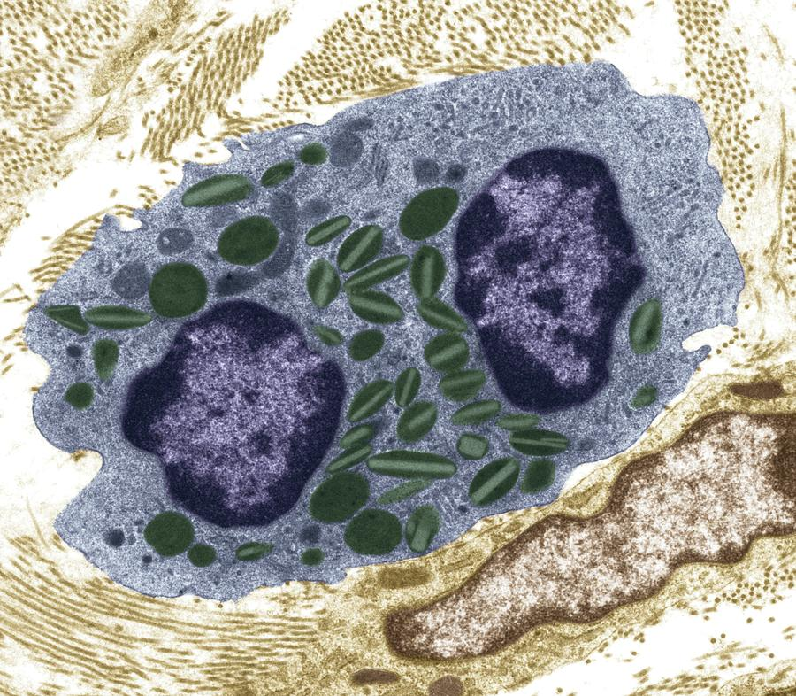 Image result for TEM image of white blood cell
