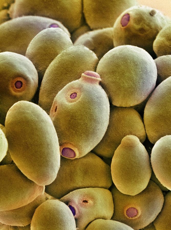 Brewer's Yeast Photograph - Yeast Cells, Sem by Thomas Deerinck, Ncmir