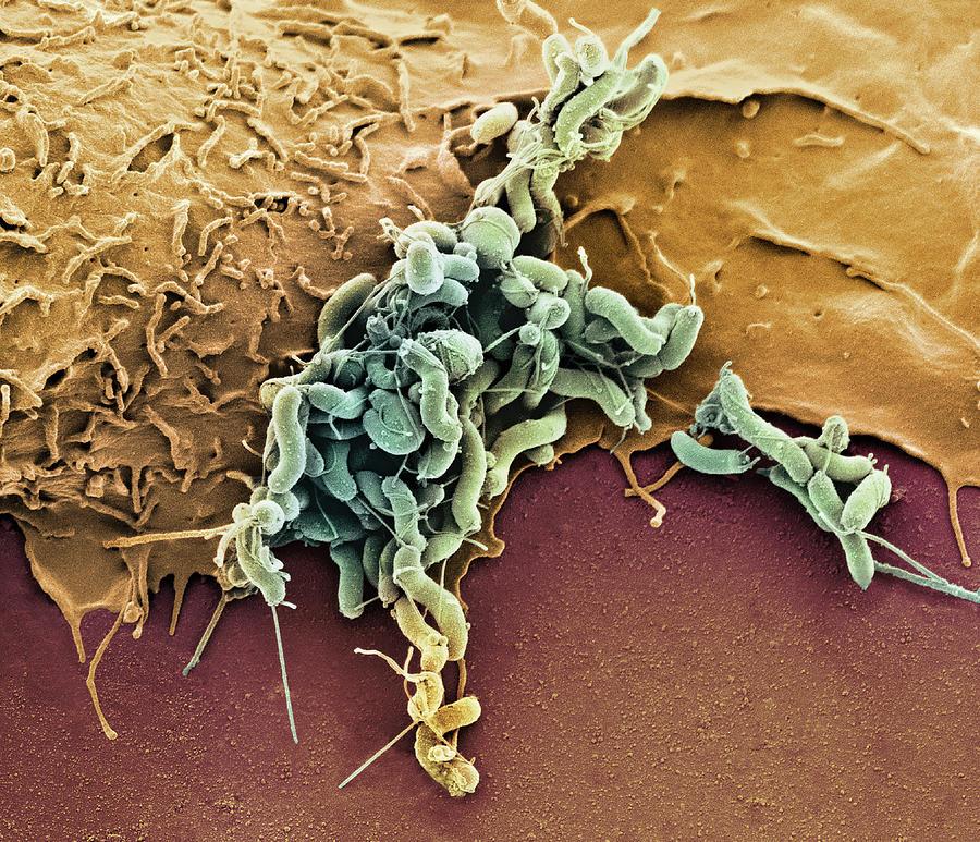 новый хеликобактер пилори фото под микроскопом из-за замужества