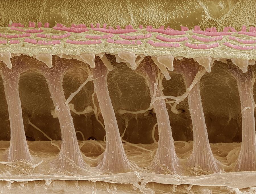 Electron Microscope Photograph - Inner Ear Hair Cells, Sem by Steve Gschmeissner