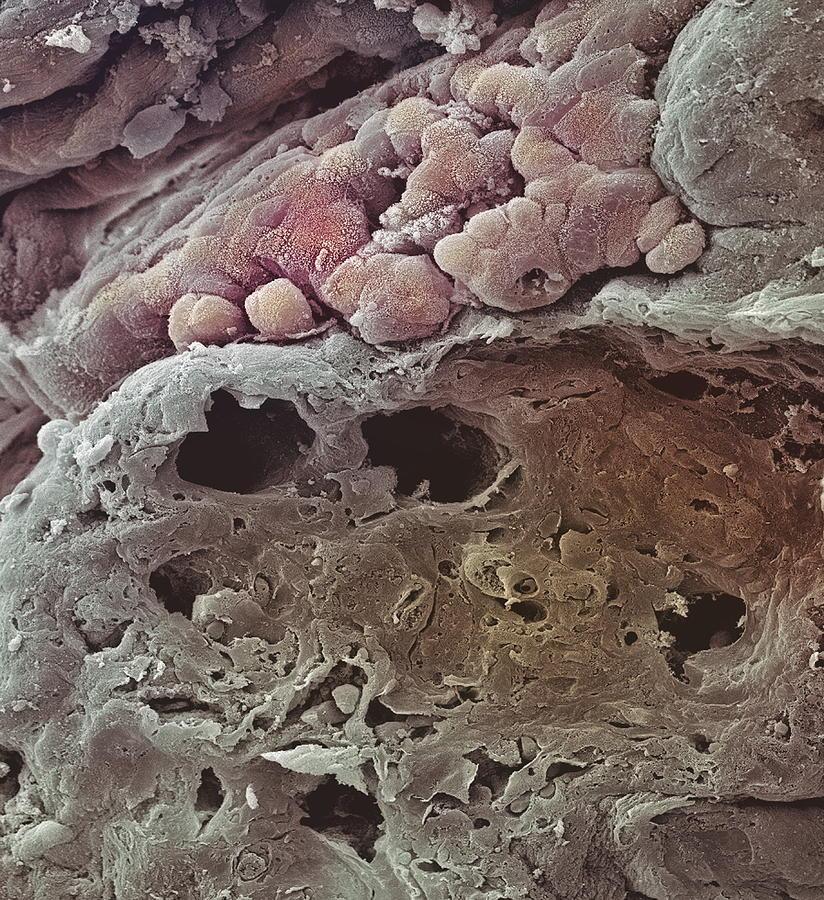 Medicine Photograph - Colon Cancer, Sem by Steve Gschmeissner
