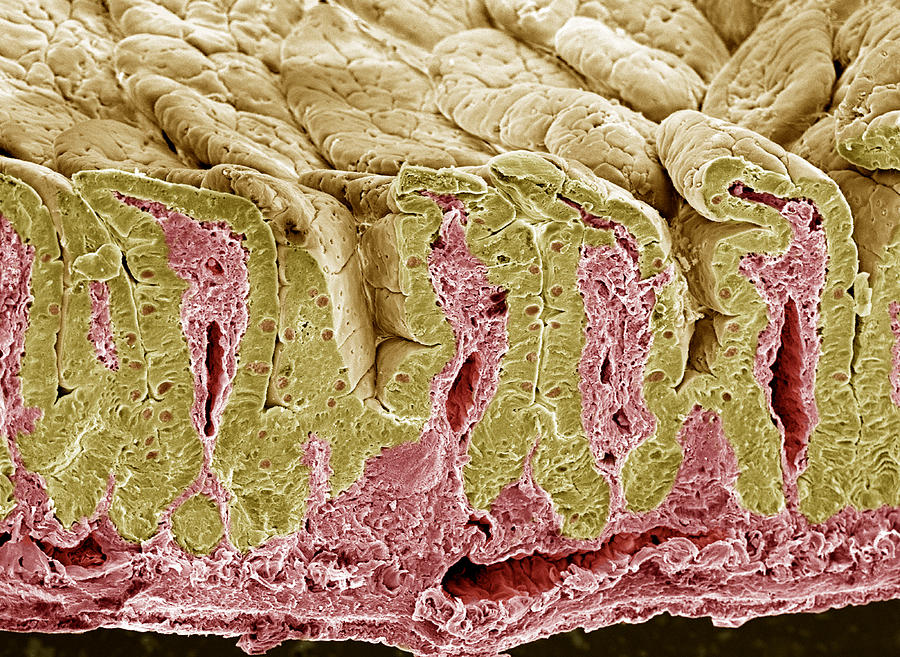 Villus Photograph - Intestinal Lining, Sem by Steve Gschmeissner