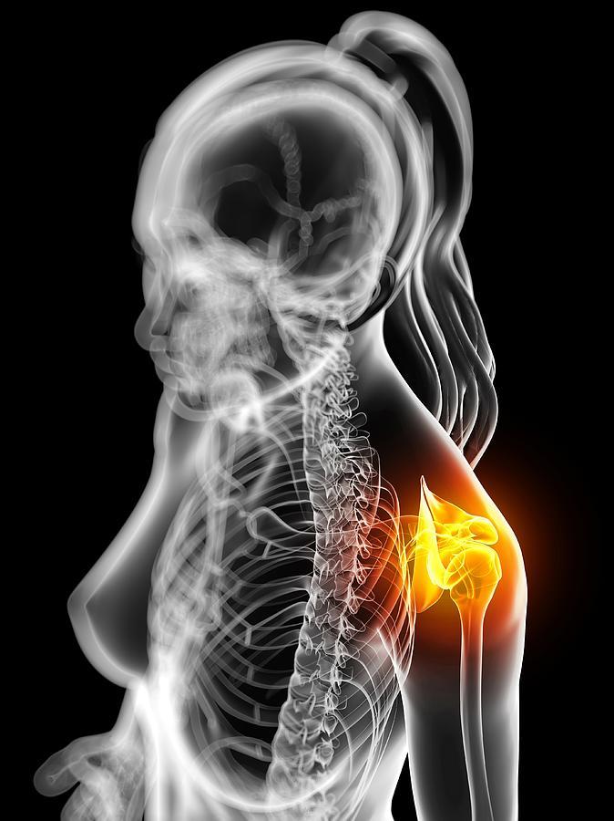 Vertical Photograph - Shoulder Pain, Conceptual Artwork by Sciepro
