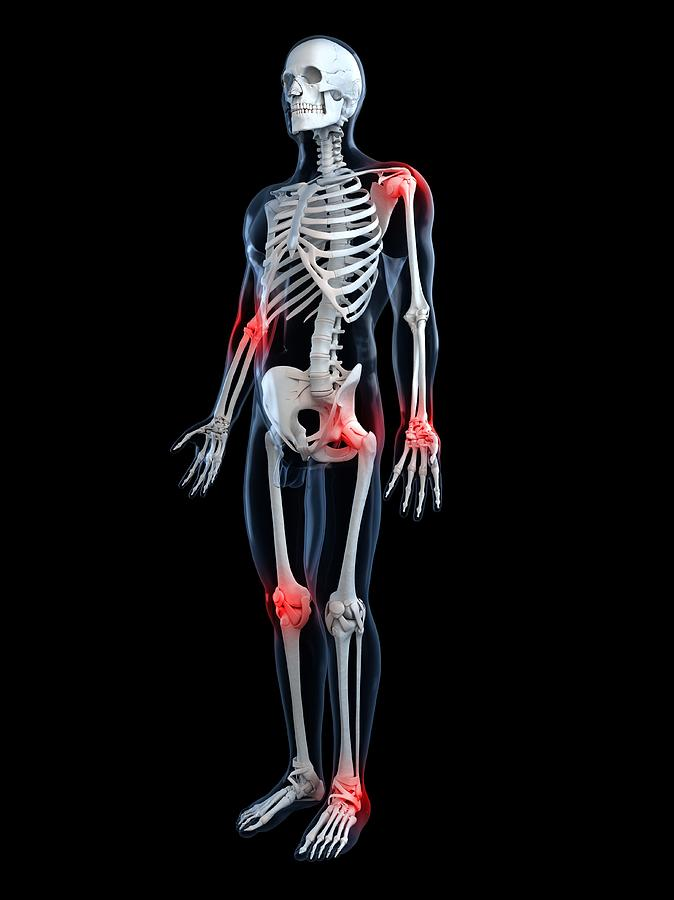 Vertical Digital Art - Joint Pain, Conceptual Artwork by Sciepro