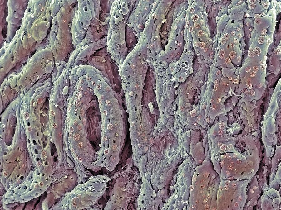 Digestive System Photograph - Ulcerative Colitis, Sem by Steve Gschmeissner