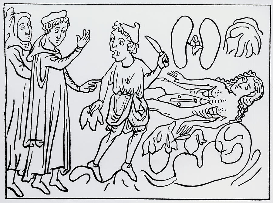 Dissection Photograph - 14th Century Depiction Of Dissection by