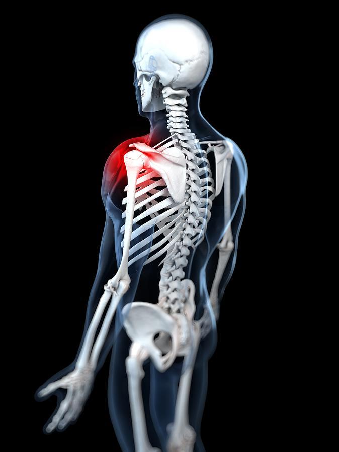 Vertical Digital Art - Shoulder Pain, Conceptual Artwork by Sciepro