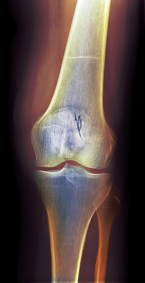 Rheumatoid Arthritis Photograph - Arthritic Knee, X-ray by Du Cane Medical Imaging Ltd
