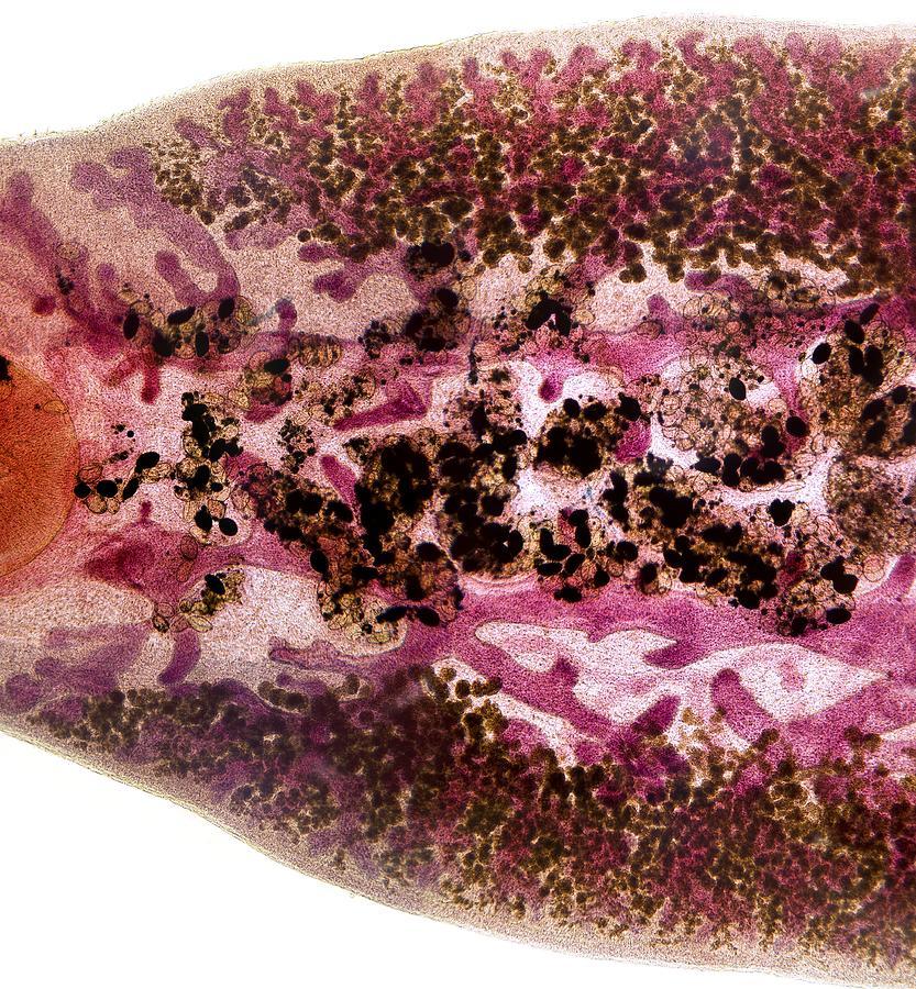 Fasciola Hepatica Photograph - Beef Liver Fluke, Light Micrograph by Dr Keith Wheeler