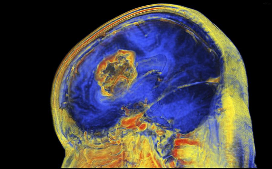 3-d Photograph - Brain Tumour, 3-d Mri Scan by Pasieka