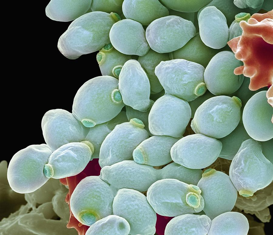 Biological Photograph - Candida Albicans Yeast Cells, Sem by Steve Gschmeissner