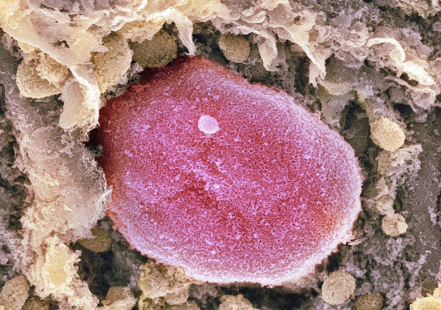 Nucleus Photograph - Cell Nucleus, Sem by Dr David Furness, Keele University