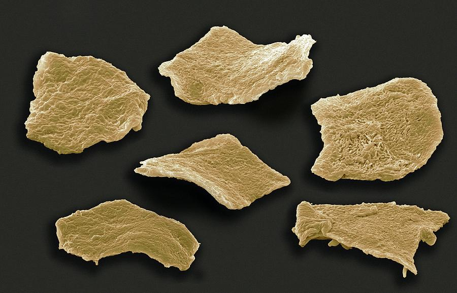 Cell Photograph - Cheek Squamous Cells, Sem by Steve Gschmeissner