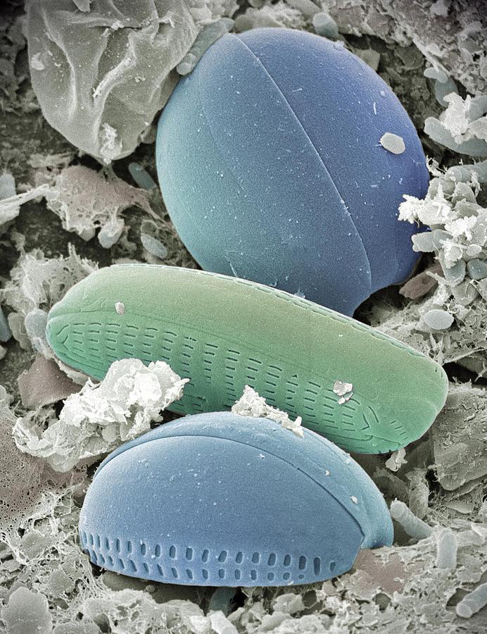 Vertical Photograph - Diatom Algae, Sem by Steve Gschmeissner