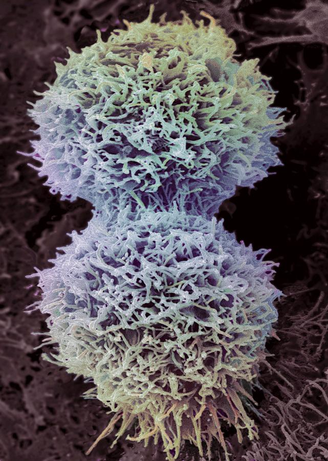 Rounded Circular Photograph - Dividing Cervical Cancer Cell, Sem by Steve Gschmeissner