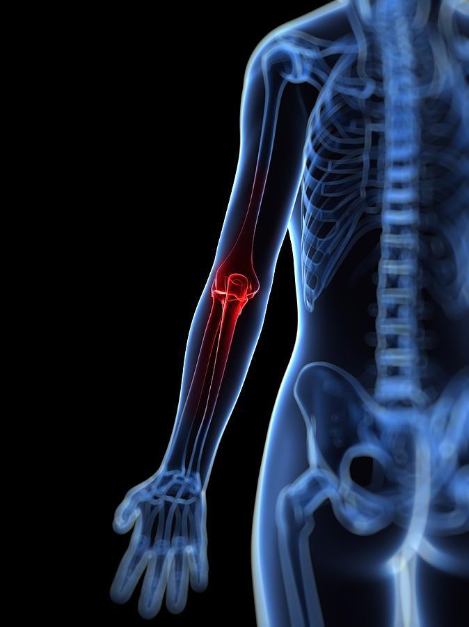 Elbow Pain, Conceptual Artwork Digital Art by Sciepro