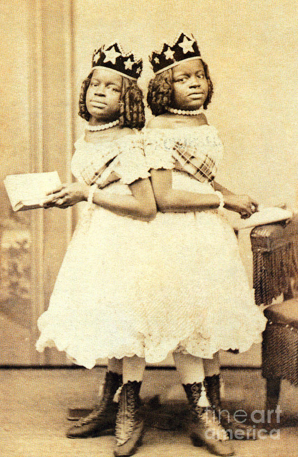Twins Photograph - 2 Headed Girl Millie-chrissie by Photo Researchers