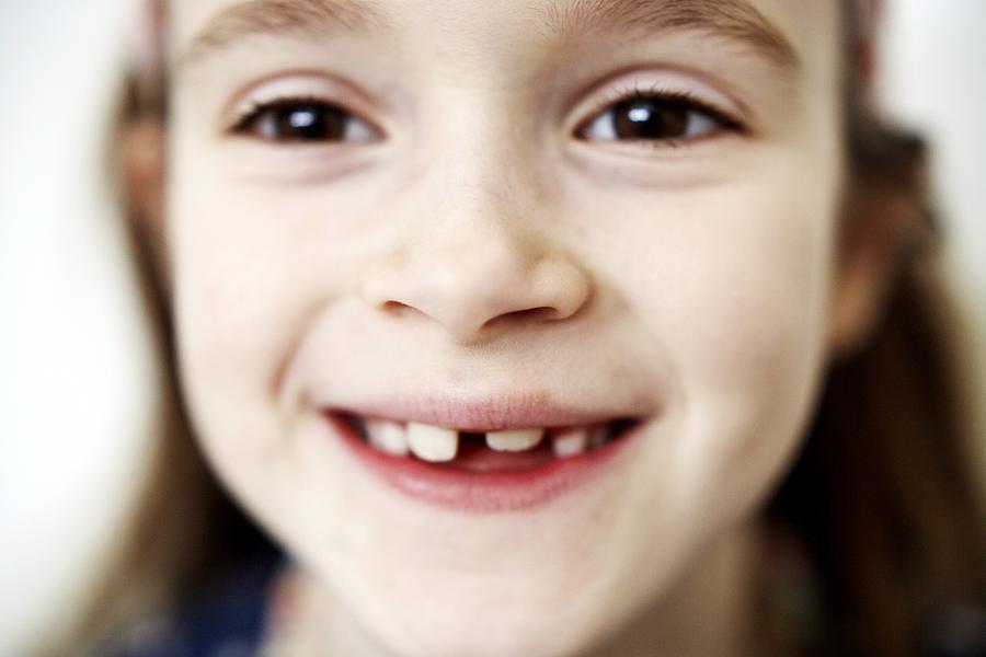 Human Photograph - Loss Of Milk Teeth by Ian Boddy