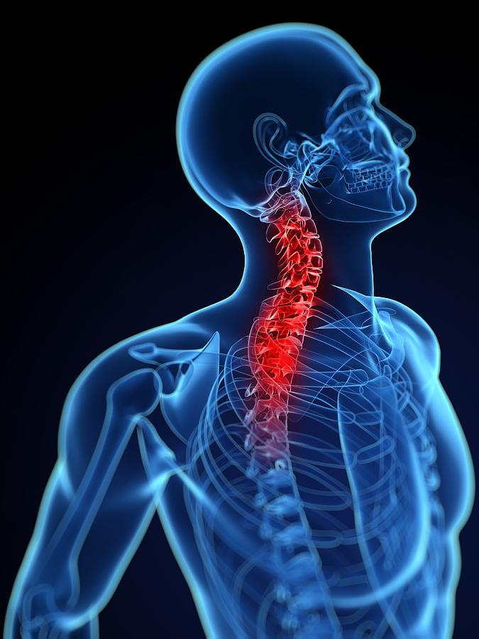 Neck Pain, Conceptual Artwork Photograph by Sciepro