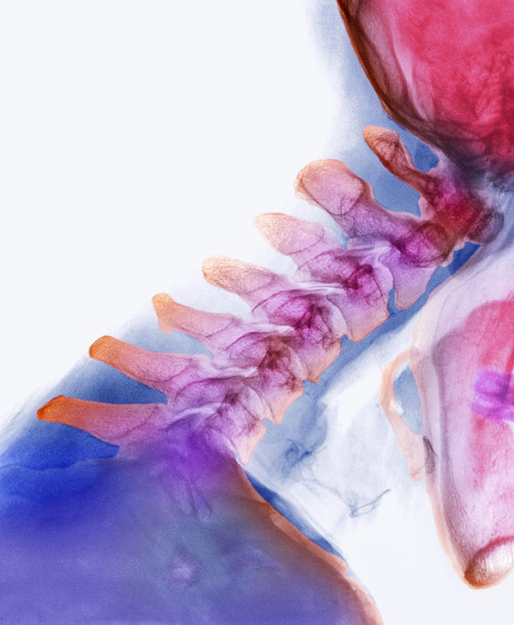 Man Photograph - Neck Vertebrae Extended, X-ray by