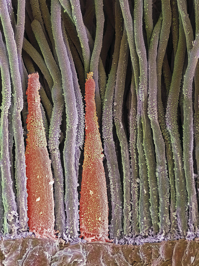 Retina Rod And Cone Cells Sem Photograph By Steve Gschmeissner