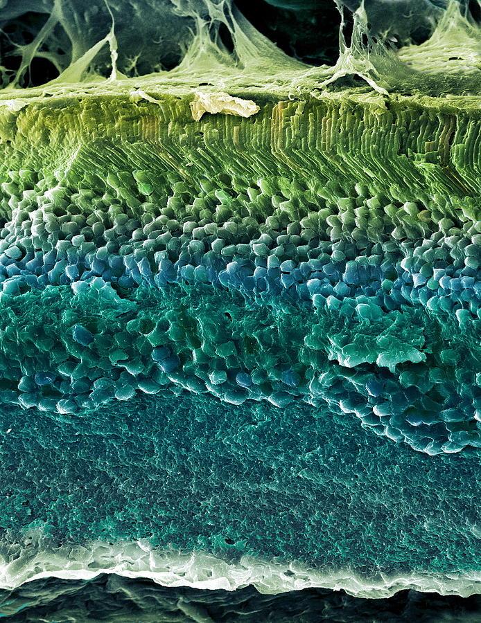 Rods Photograph - Retina, Sem by Steve Gschmeissner