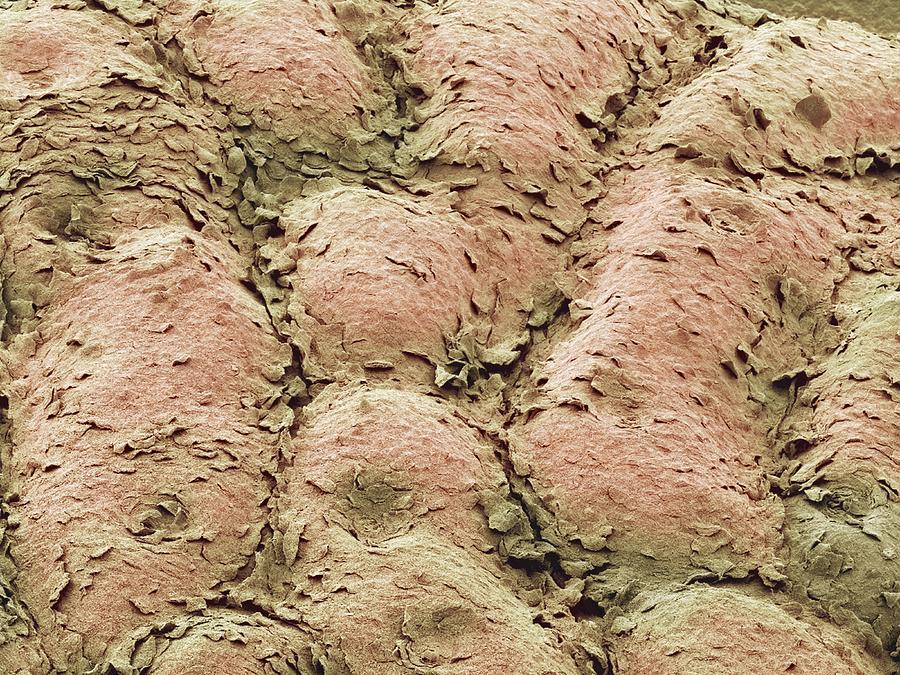 Skin Photograph - Skin Surface, Sem by Steve Gschmeissner