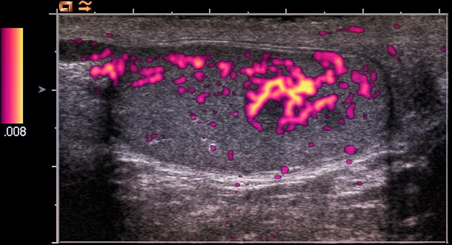 Testicular Cancer, Ultrasound Scan Photograph by Du Cane ...