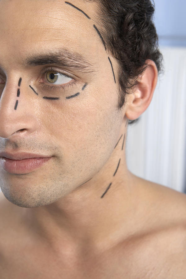 Face Photograph - Cosmetic Surgery by Adam Gault