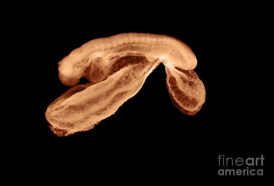 23 Day Old Photograph - 23 Day Old Human Embryo by Omikron