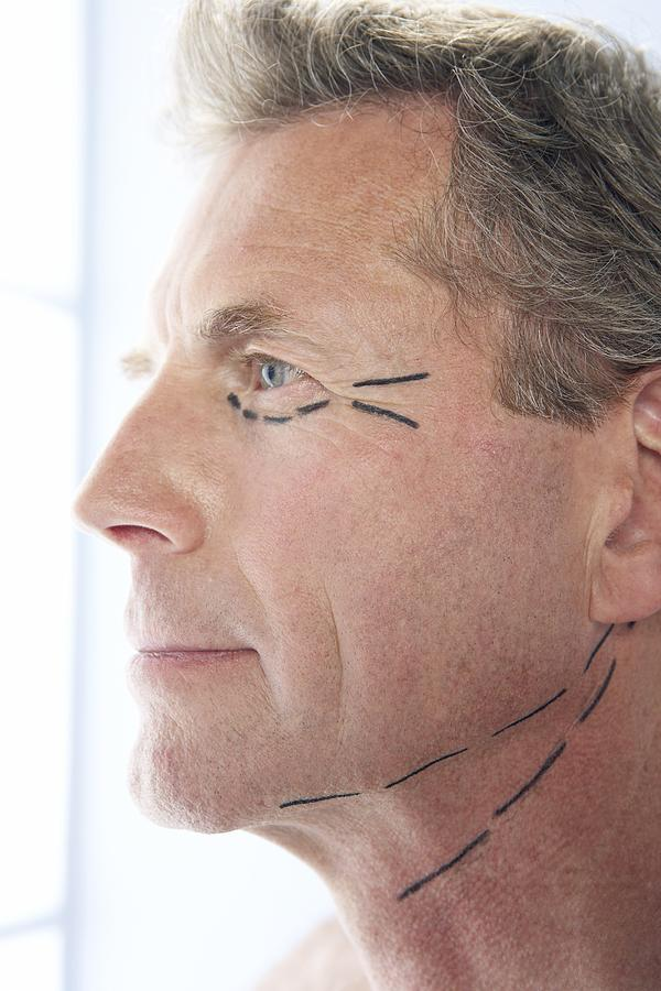 Mark Photograph - Cosmetic Surgery by Adam Gault