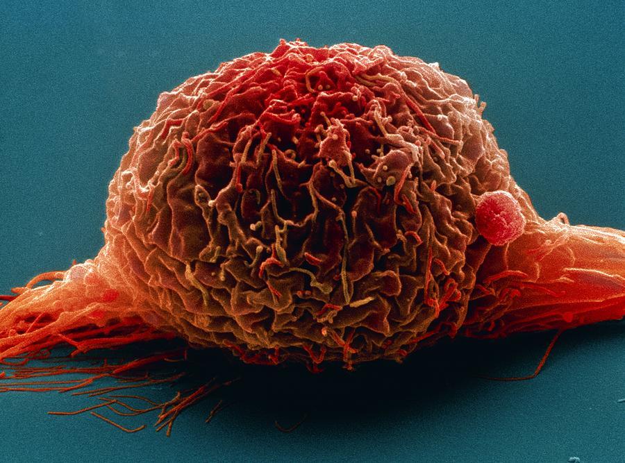 Images Photograph - Bladder Cancer Cell, Sem by Steve Gschmeissner