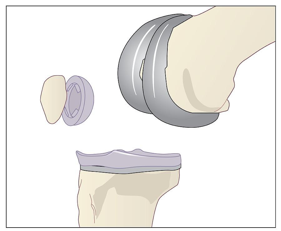 Artwork Photograph - Knee Replacement, Artwork by Peter Gardiner