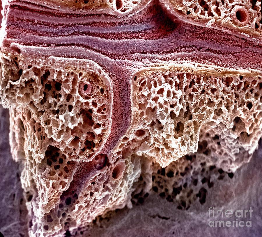 Sem Photograph - Mouse Lung, Sem by Science Source