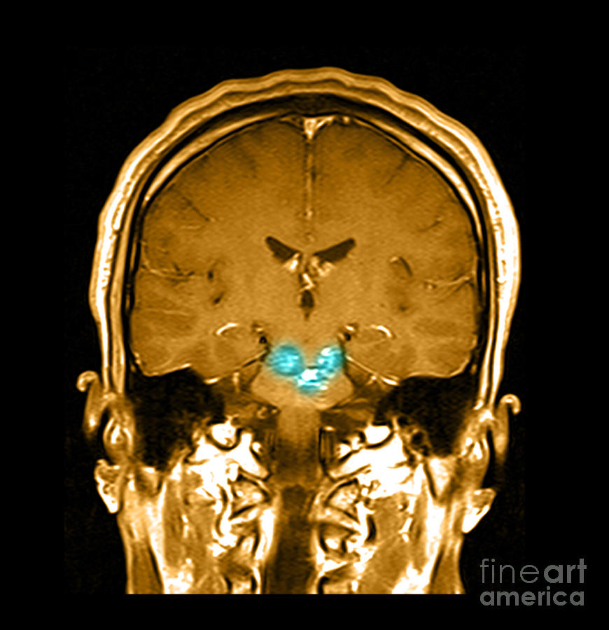 Anatomical Photograph - Mri Brainstem Cavernous Malformations by Medical Body Scans