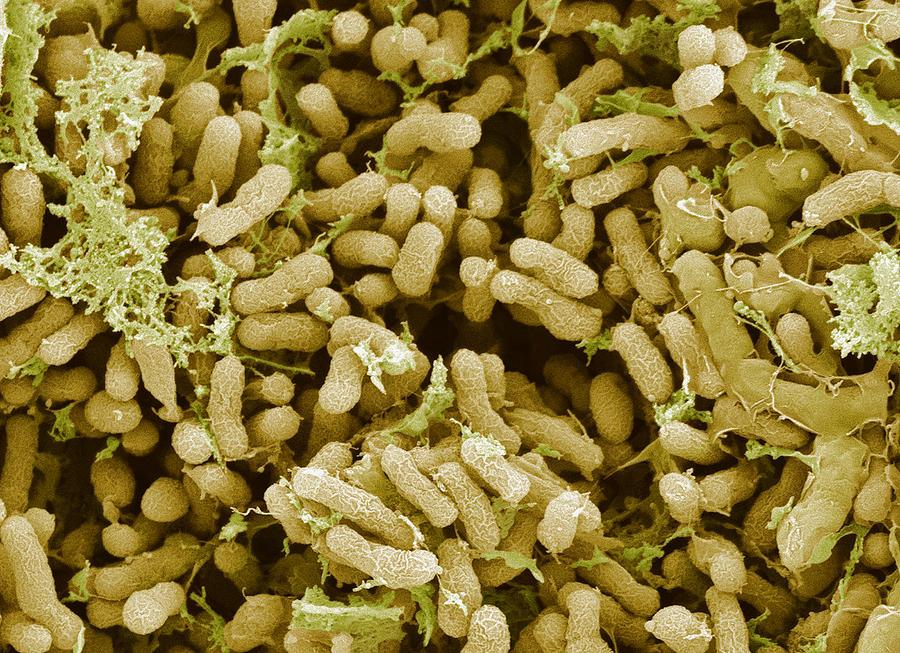 Symbiont Photograph - Nitrogen-fixing Bacteria, Sem by Steve Gschmeissner