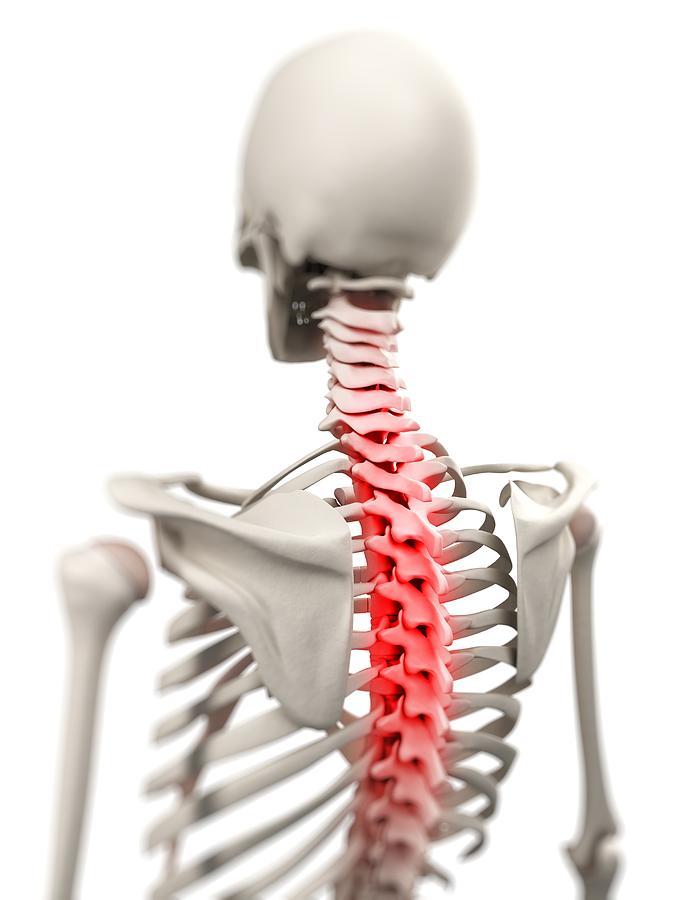 Artwork Photograph - Back Pain, Conceptual Artwork by Sciepro