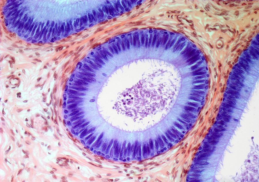 Epididymis, Light Micrograph Digital Art by Steve Gschmeissner
