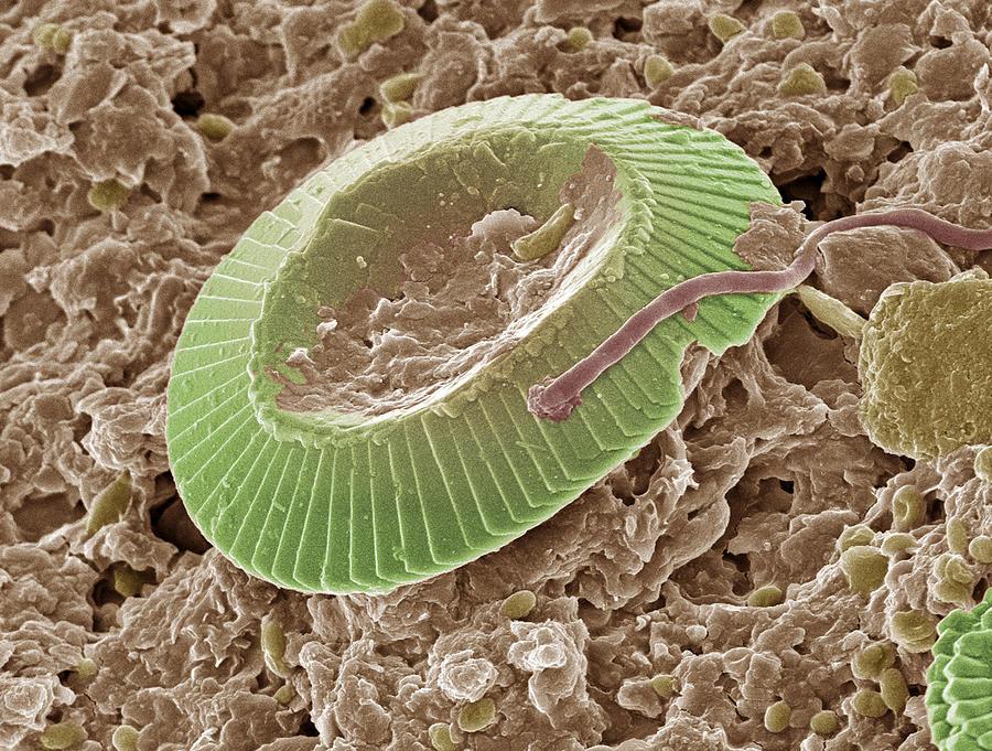 Horizontal Photograph - Diatom Alga, Sem by Steve Gschmeissner