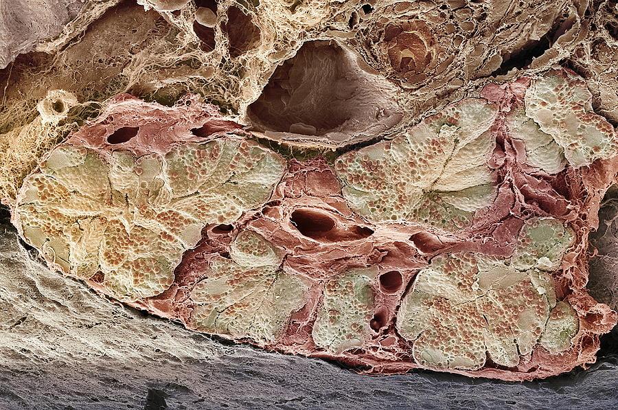 Blood Vessel Photograph - Pancreas Tissue, Sem by Steve Gschmeissner