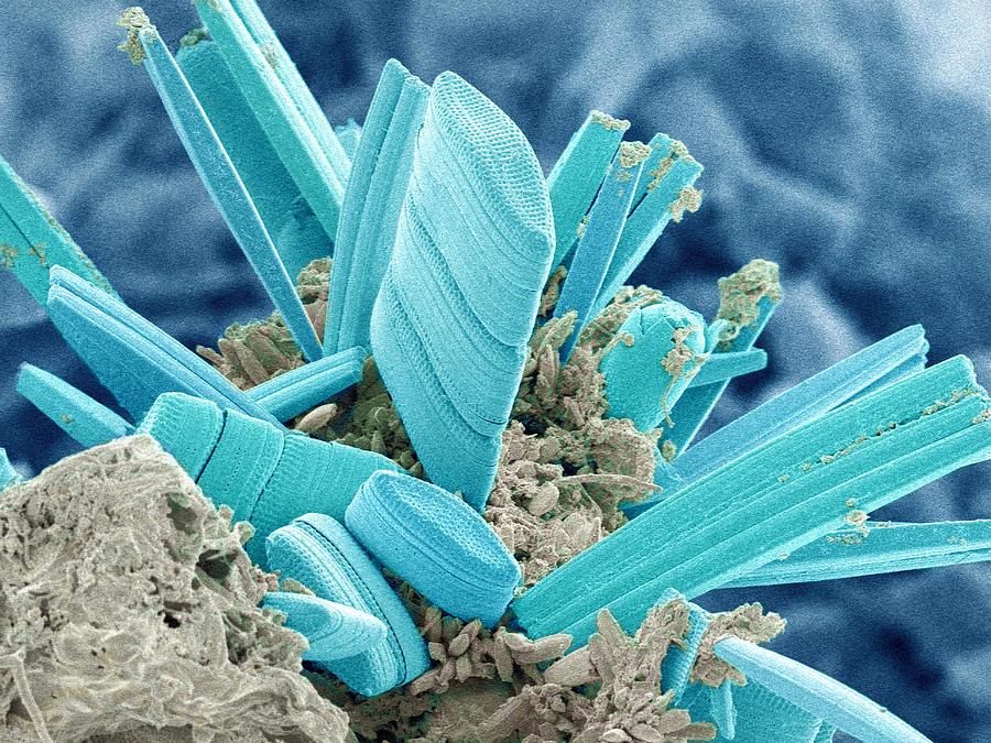 Alga Photograph - Diatoms, Sem by Susumu Nishinaga