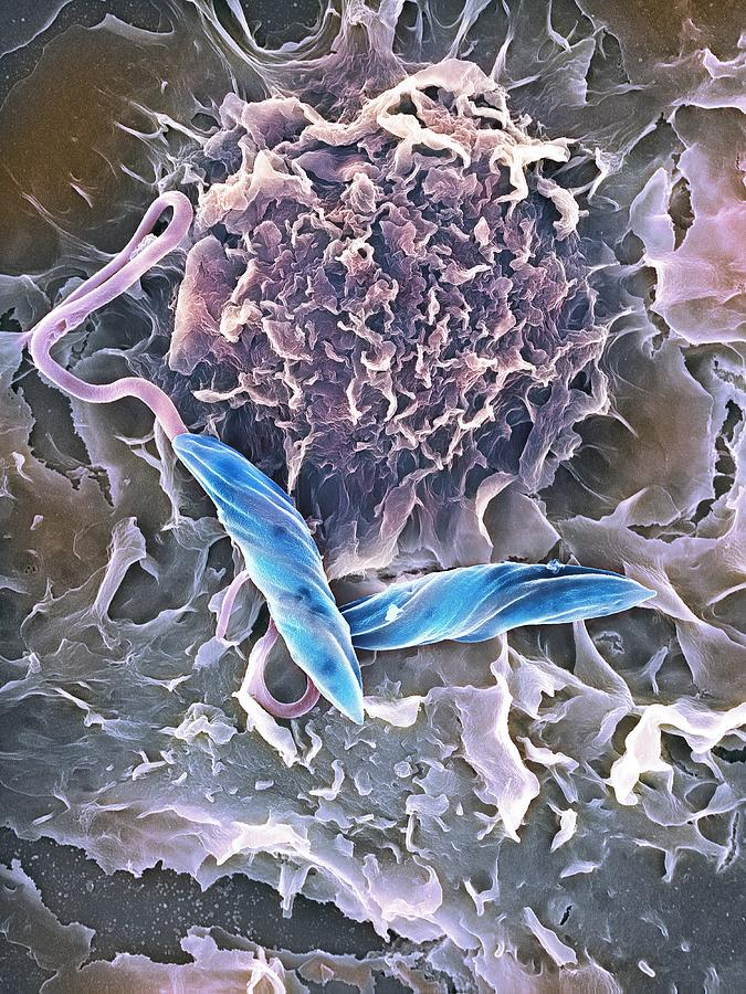 Leishmania Mexicana Photograph - Macrophage Attacking A Foreign Body, Sem by