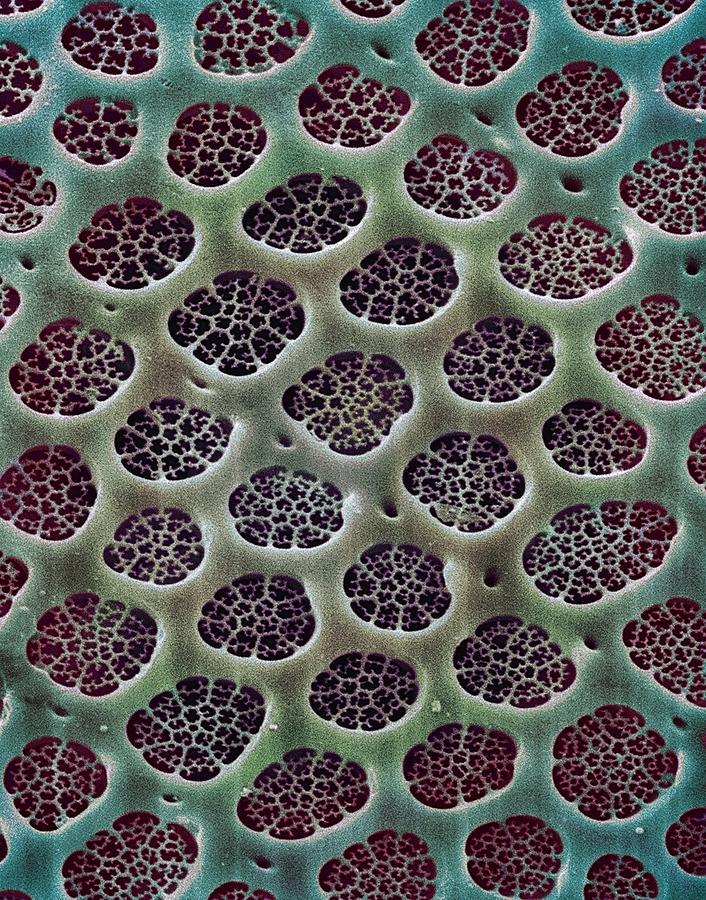 Diatom Photograph - Diatom Alga, Sem by Steve Gschmeissner
