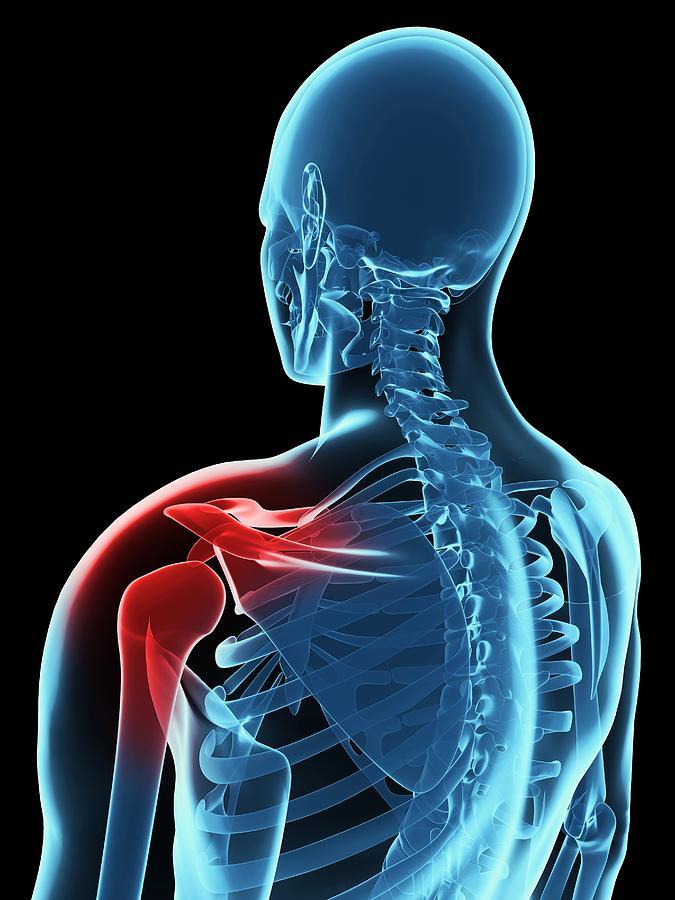 Artwork Photograph - Shoulder Pain, Conceptual Artwork by Sciepro